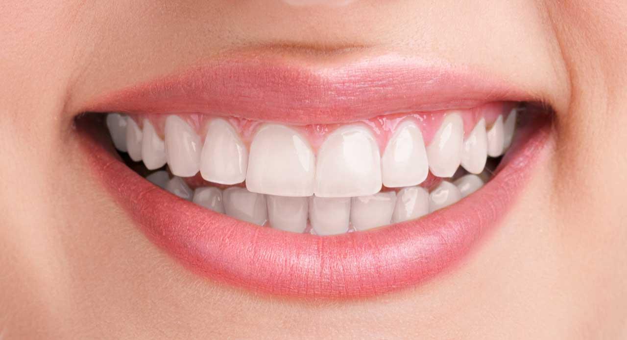 sbiancamento laser denti bergamo