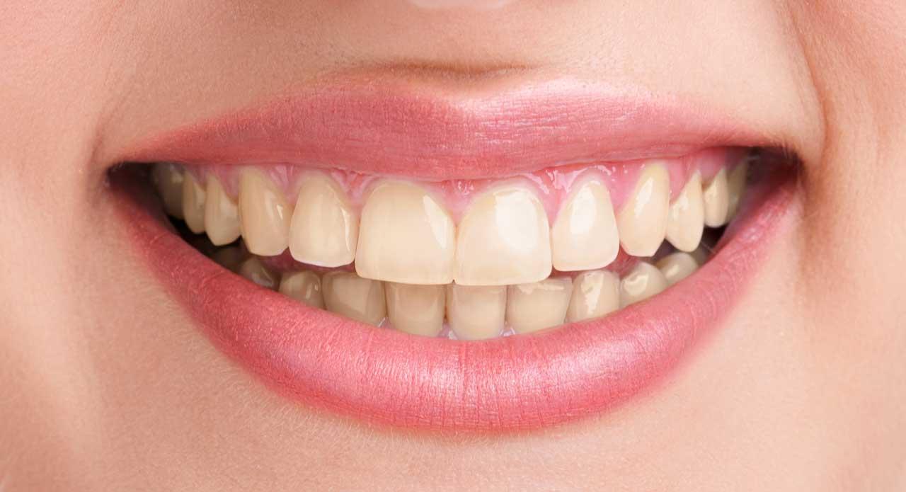prima denti brutti